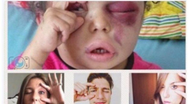 """""""Occhi aperti"""" sullo Yemen, il gesto di una bimba – scampata ad un bombardamento, che cerca di aprire l'occhio tumefatto per vedere – diventa il simbolo del conflitto"""