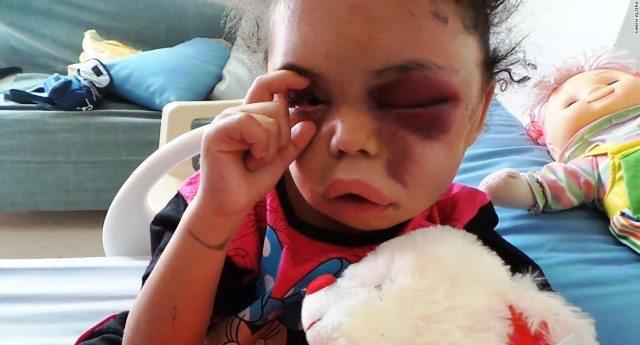 Morti di serie A e morti di serie B – Sono tre giorni che i Tg parlano dell'uragano che ha provocato 20 morti in USA. 2 anni di silenzio, invece, per la guerra in Yemen che ha già ucciso 10.000 persone. Ma i primi sono Americani (serie A) i secondi sono solo poveri negri!